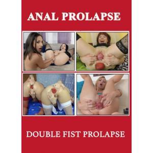 Anal Prolapse - Double Fist Prolapse